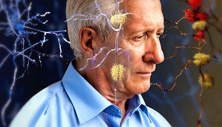 Alzheimer, Salud, Marca-pasos,